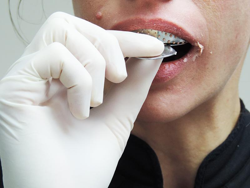 Dentiste qui prend une empreinte pour faire un protège dents pour le JJB
