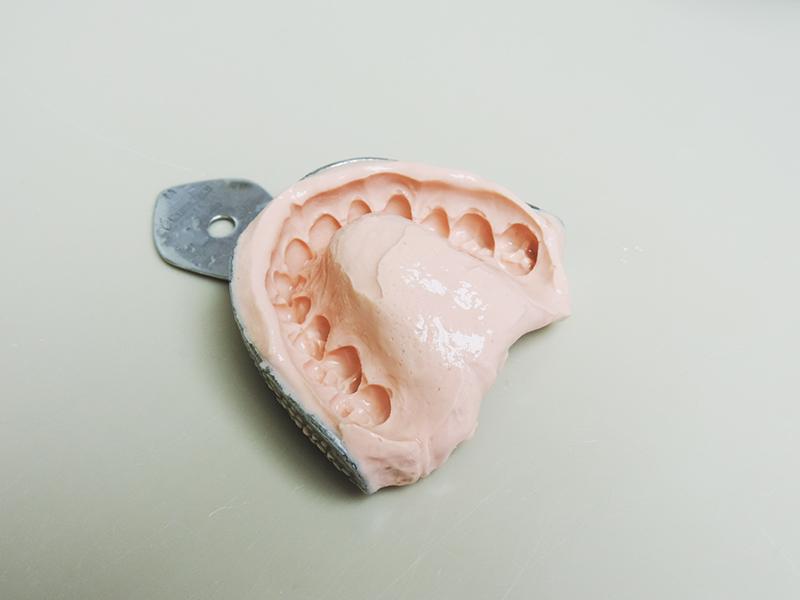 Empreinte pour la réalisation d'un protège dents pour le jiu jitsu brésilien